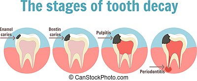 The stages of tooth decay infographic. Dental toothache...