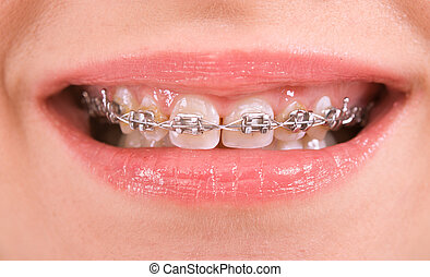 braces - smile with braces on teeth