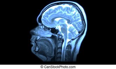 MRI scan - MRI brain scan