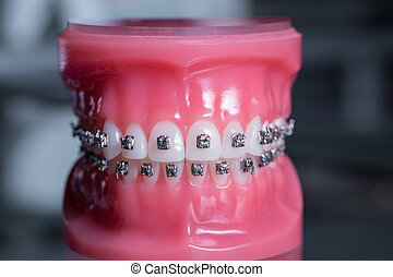 tooth model with metal wired dental braces. Medicine