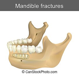 Mandible fractures is the largest, strongest and lowest bone...