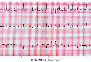ECG with supraventricular extrasystole and short paroxysm of...