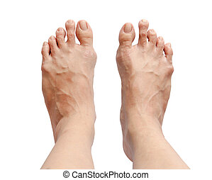 Bunion - hallux valgus on white background and clipping path...