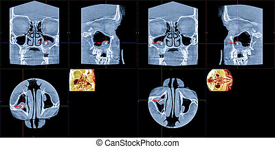 MRT, foreign body of the right maxillary sinus - MRT -...