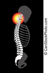 Spinal Disc Prolapse Neck Pain Cervical Vertebrae - Spinal...