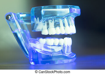 Dental alignment teeth model - Dental teeth orthodontic...