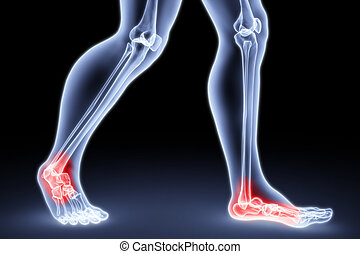 feet - male feet under the X-rays knee joints are...