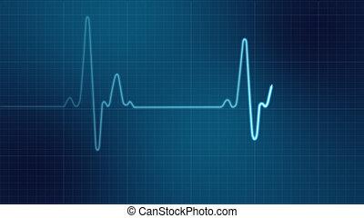 EKG heart monitor  - EKG heart monitor
