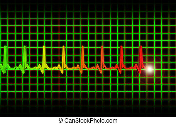 Ekg/ecg pulse diagram - Ekg/ecg heart beat pulse diagram