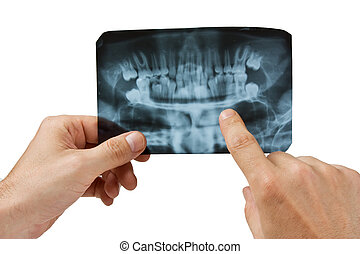 hand holds radiograph  isolated on a white background