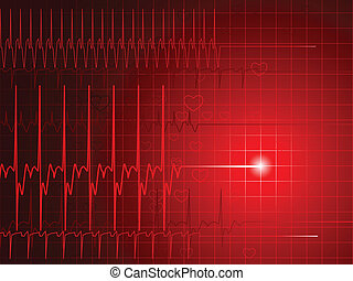 EKG flatline - An EKG monitor display shows a flatlining...