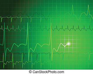 EKG background - Medical background with green ekg heartbeat...