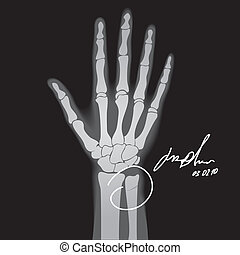 Brooken hand - Vector illustration of brooken hand. X-ray.