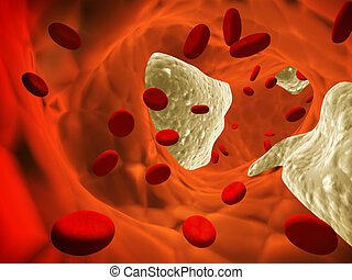 Atherosclerosis - clogged artery and erythrocytes