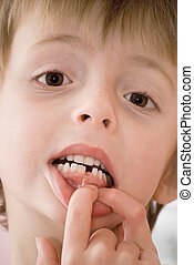 Child showing mouth where new tooth is growing.