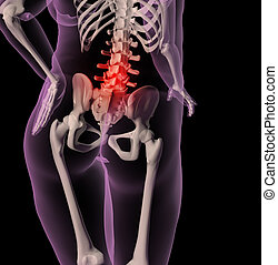 Overweight female skeleton with back pain - 3D render of a...