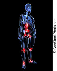 painful joints / backache - 3d rendered illustration of a...