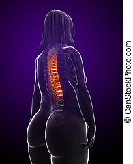 overweight woman - backache - 3d rendered illustration of a...