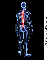 overweight man - painful spine - 3d rendered illustration of...