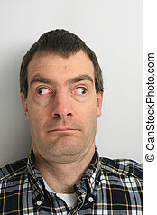 walleyed man - disturbing looking man with strabismus or...