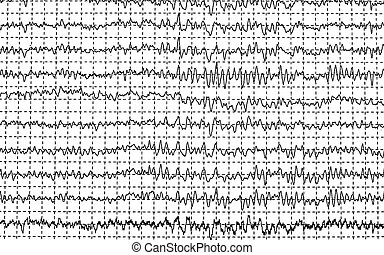 brainwave on encephalogram EEG