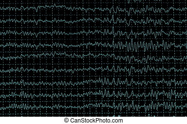 brainwave on encephalogramme EEG