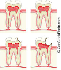 Tooth - Vector set - tooth. Decay process