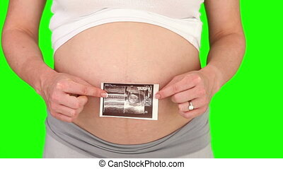 Pregnant woman showing us a scan of her future baby