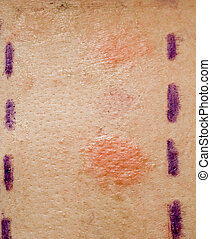 SSkin Allergy Test - Skin Allergy Patch Test on Back of...