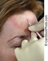 Botox injection in the forehead, close up