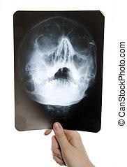 Roentgen photo of skull - Man is holding roentgen photo of...