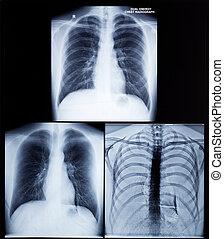 Raio X, imagem, de, human, peito