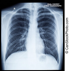 X-Ray Image Of Human Chest - X-Ray Image Of Human Healthy...