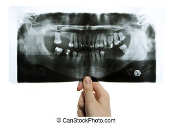 Roentgen photo of teeth - Man is holding roentgen photo of...
