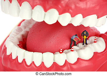 Miniature workers drilling a cavity in a tooth. Dental...
