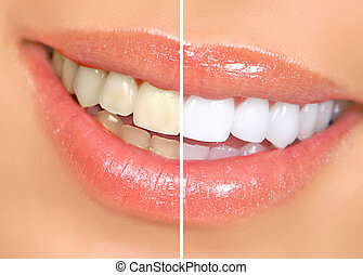 woman teeth - Smiling woman mouth with great teeth Over...