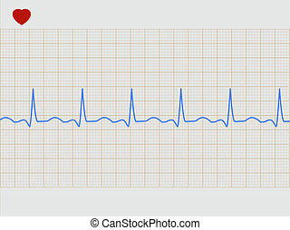 Normal electronic cardiogram. EPS 8