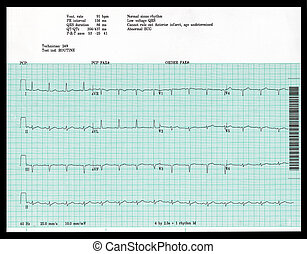 Abnormal EKG - A real EKG shows an abnormal result