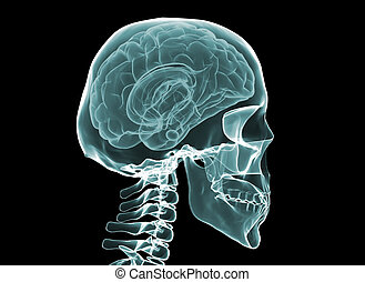 X-ray brain and skeleton