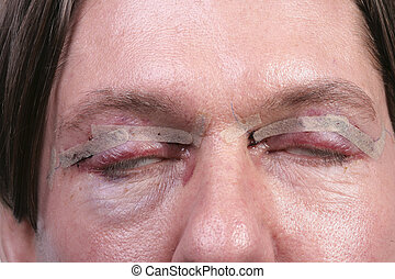 Plastic surgery on eyes - Man one day after plastic surgery...