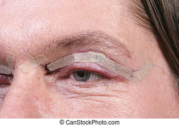 Eyelid surgery - Close up of eye one day after eyelid...