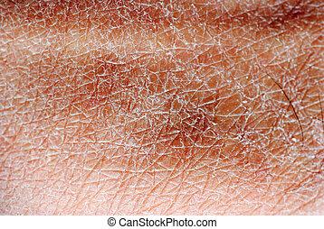 seco, piel, textura