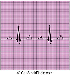 ecg of heart beat - recording of a healthy heartbeat on...