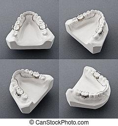 dental, yeso, molde