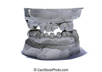 Plaster teeth cast
