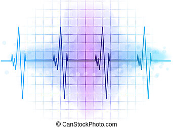 EKG, diagrama