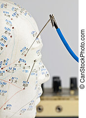 electric-acupuncture
