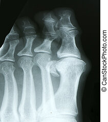 xray of toes - parts of the human anatomy through xray