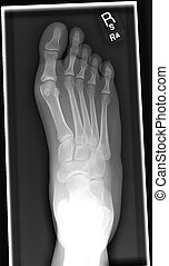 foot xray - xray of healthy foodt