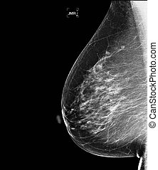 mammogram of healthy breast